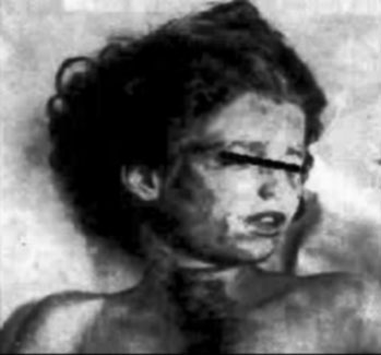 Mary Phagan Autopsy Photo, 1913